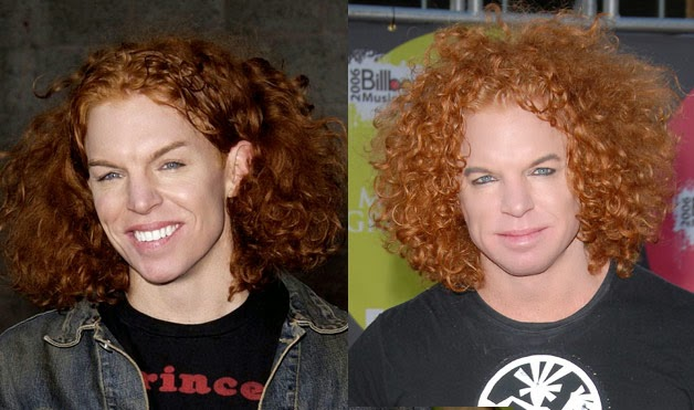 Has Carrot Top Had Plastic Surgery Gone Wrong Before and ...