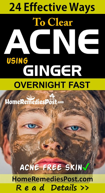 Ginger For Acne, Ginger Acne, Ginger And Acne, Is Ginger Good For Acne, How To Use Ginger For Acne, How To Get Rid Of Acne, How To Get Rid Of Acne Fast, Home Remedies For Acne, Acne Treatment,