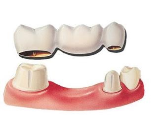 Bọc răng sứ thẩm mỹ có phải lấy tủy không?