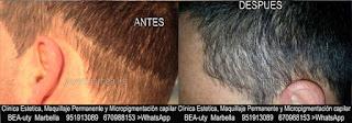 Micropigmentación capilar Málaga CLÍNICA ESTÉTICA MARBELLA: Te ofrecemos la alta calidad de  nuestra asistencia, con los mejores expertos en micropigmentación capilar y maquillaje permanente en Málaga y Marbella