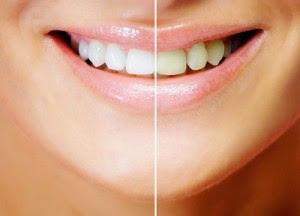 Teeth Withing Tips In Urdu Teeth Tips And Tricks Hearbal Beauty