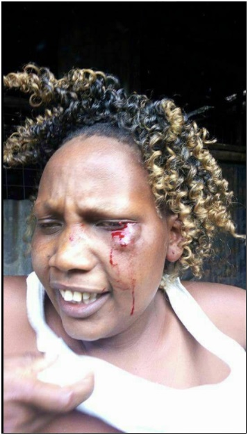 Women STR!PP3D N@K3D and beaten as UHURU/ RUTO's supporters fight over 500 bob given after rally (PHOTO)