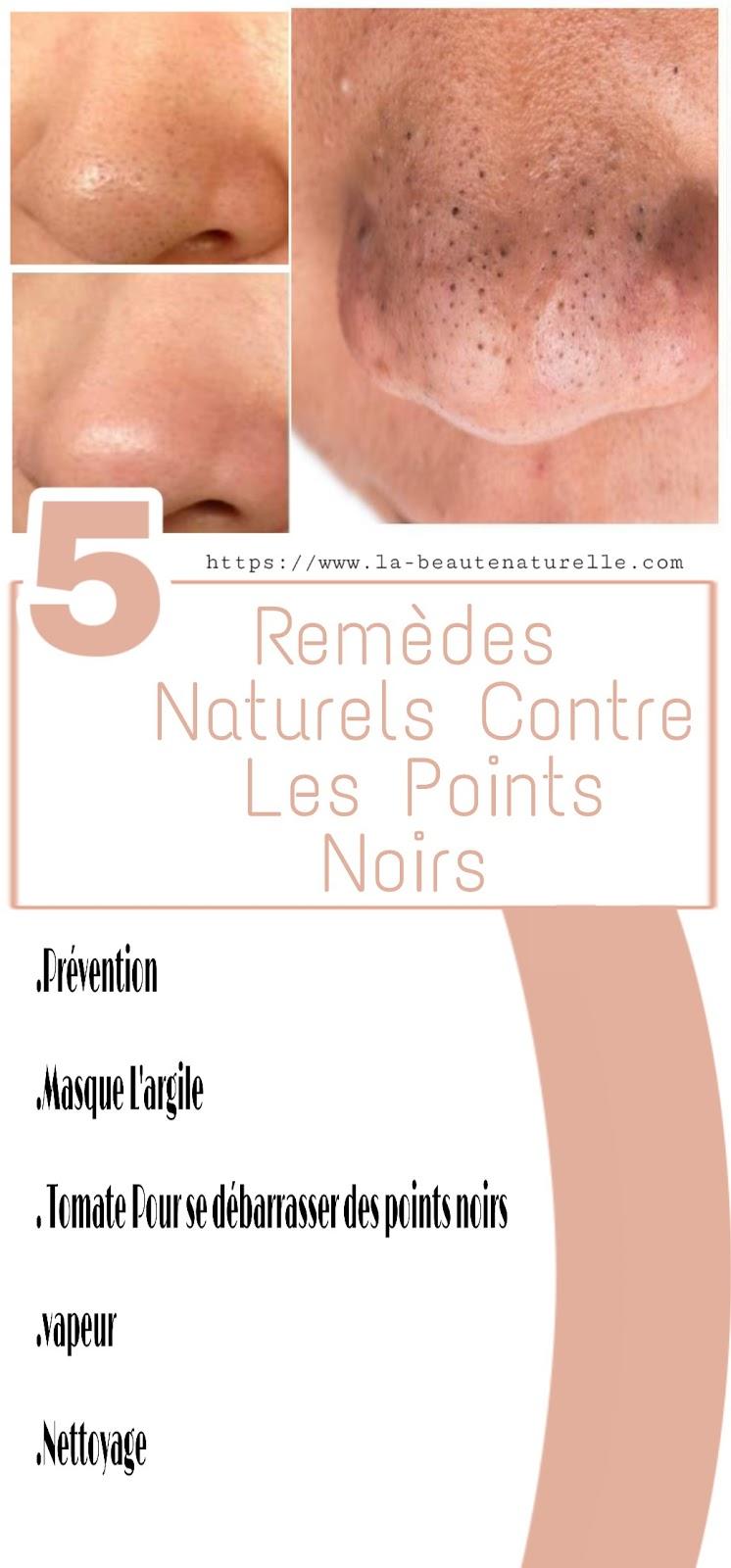 5 Remèdes Naturels Contre Les Points Noirs