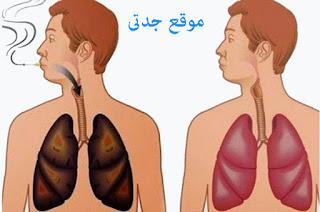 تنظيف الرئتين عند المدخنين طريقة مجربة