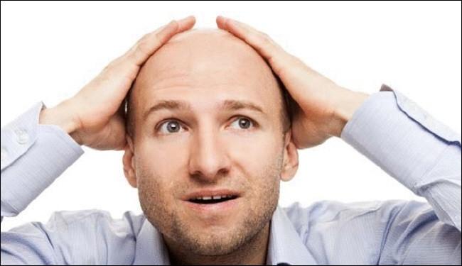دراسة: زراعة الشعر تزيد من جاذبية الرجل