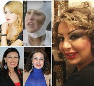 بالصور 5 نجوم وقعوا ضحايا عمليات تجميل فاشلة واهمال طبى رقم 5 قد يصدمك شكلها ماذا حدث معها
