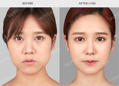 foto sebelum dan sesudah operasi plastik di korea 01