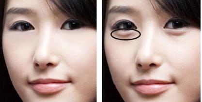 Cara menghilangkan kantung mata secara alami dan mudah