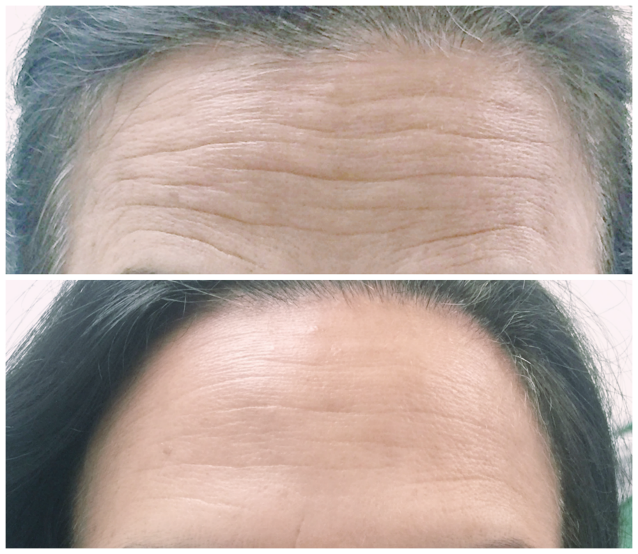 Radiofrequency Microneedling For Wrinkles