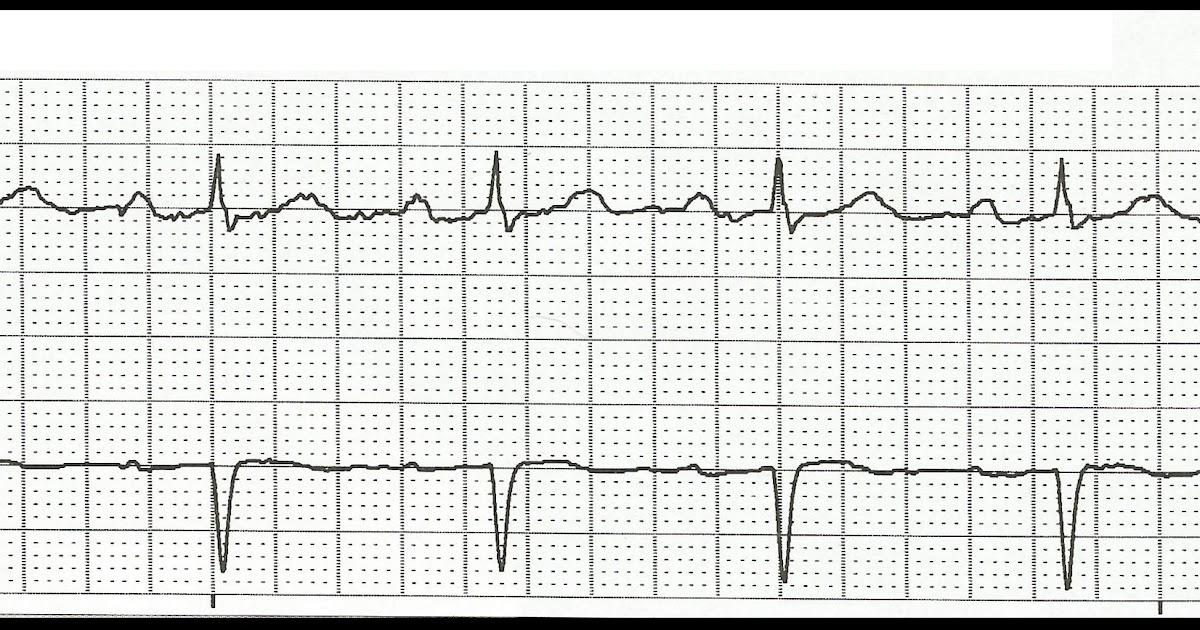 Float Nurse: ECG Rhythm Strip Quiz 105