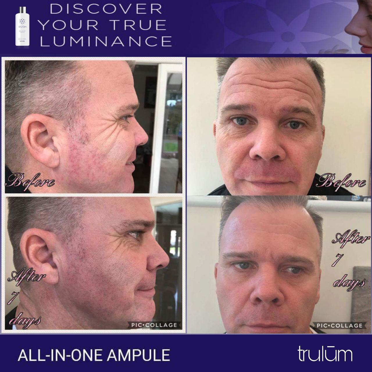 Jual Trulum All In One Ampoule Di Silau Laut, Asahan WA: 08112338376