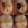 Bunda Punya Gigi Yg Berlubang? INI DIA Cara Paling Ampuh Mengatasi Gigi Yg Berlubang Tanpa Harus Pergi ke Dokter!