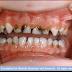المحافظة على أسنان الأطفال و كيفية العناية بها