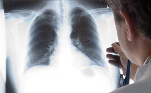 misread x-ray cancer diagnosis delay