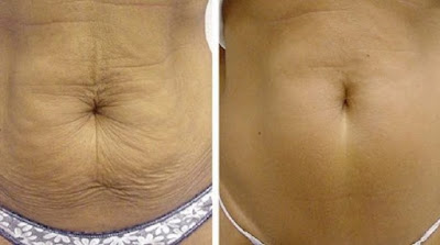 How To Tighten Your Skin Naturally