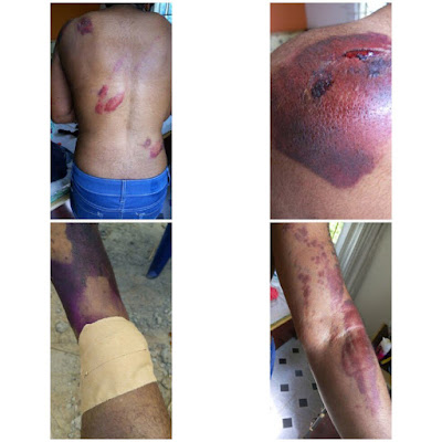 man brutally beats wife to pulp, breaks her ankle (graphic photos)