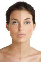 Recetas caseras para aclarar la piel