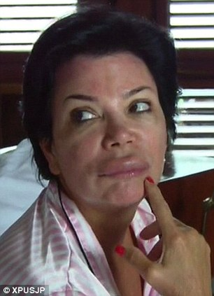 kris jenner insect bite