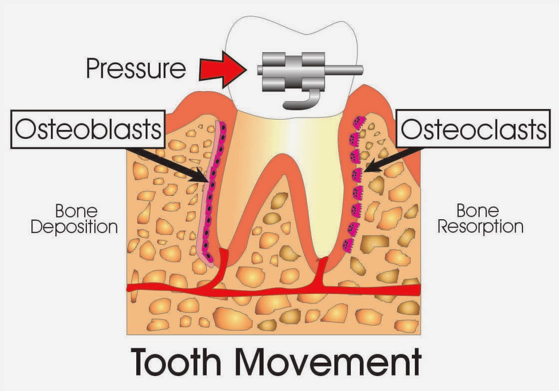 omni dental group drinking coffee accelerates orthodontic tooth Adult Teeth Diagram on the surface of the root from which the tooth moves, the periodontal membrane becomes stretched this activates cells called osteoblasts