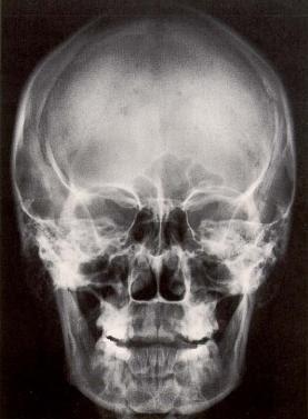 ¿Cómo se llama una radiografía de la cabeza?