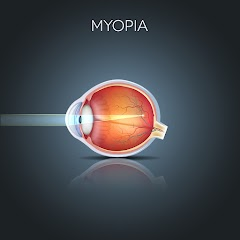 Myopia - The Hidden Truth
