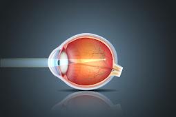 Myopia - The Hidden Truth