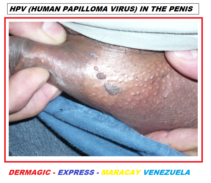 Penis hpv