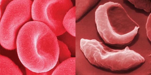 علاج فقر الدم بالأعشاب