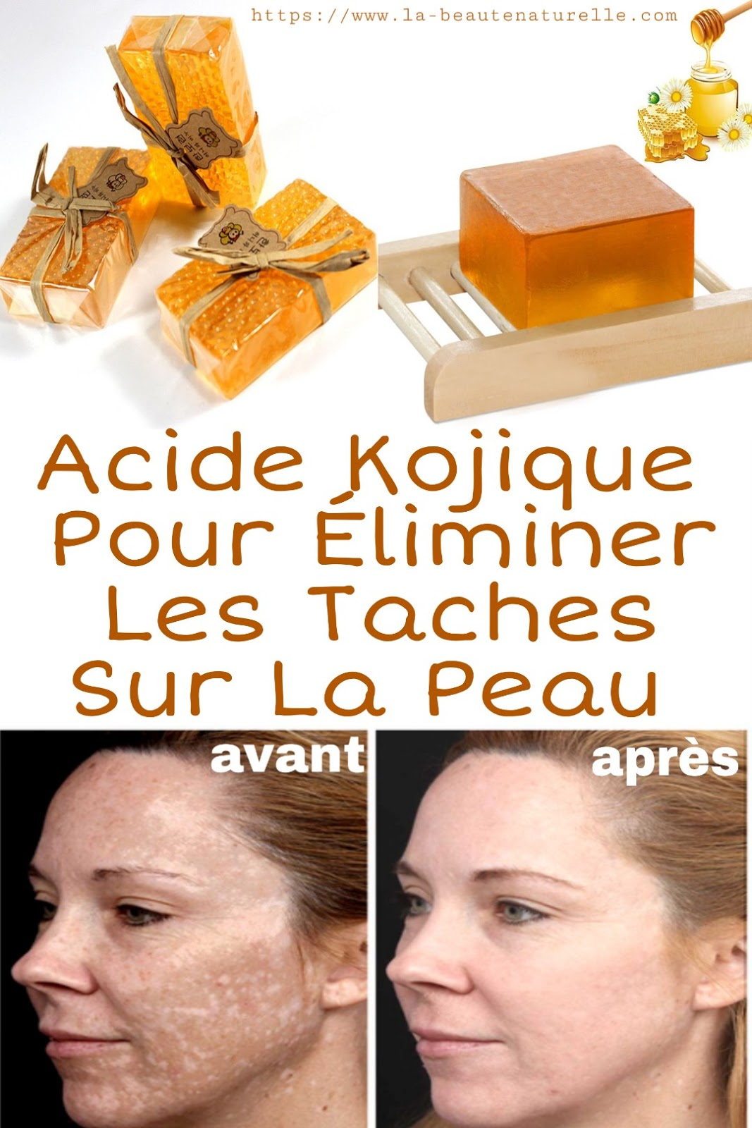 Acide Kojique Pour Éliminer Les Taches Sur La Peau