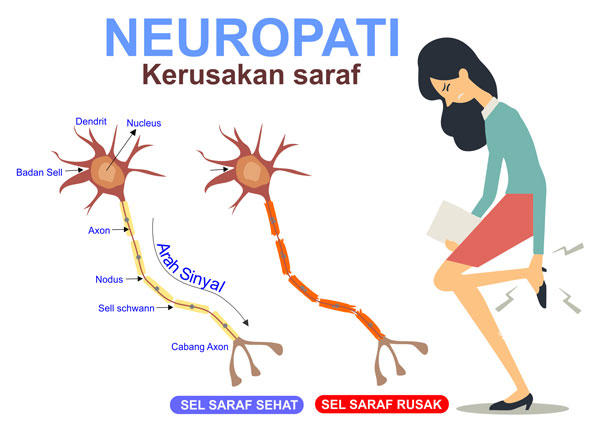 Obat Herbal Neuropati Perifer
