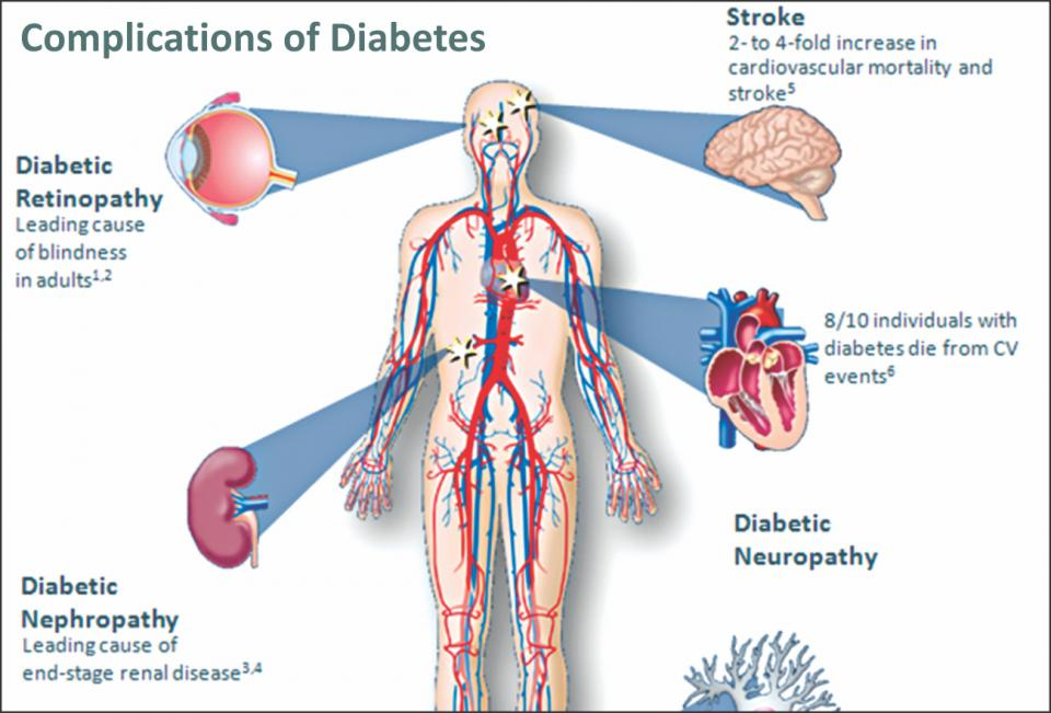diabetes and cardiovascular disease in new Lower risk of cancer, diabetes, and cardiovascular disease by dietary changes that don't require restricting food intake can be the simplest way to better health mortality and causes of death in the who multinational study of vascular disease in diabetes.