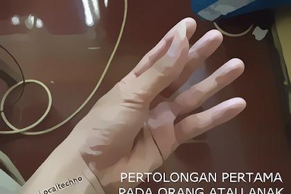 Pertolongan Pertama Pada Penderita Kram Tangan Dan Kaki By Localtechno