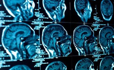 Ilmuwan Temukan Magnet Indera Keenam Manusia