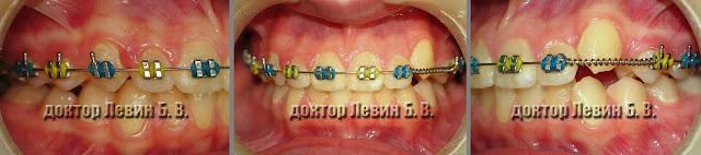Три фото зубов характеризующие прикус пациента на 8 месяце лечения