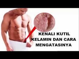 obat kutil kelamin pria ada di apotik yang khasiatnya paling ampuh