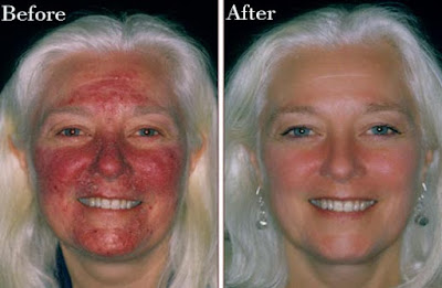 Natural Treatment For Healling Rosacea