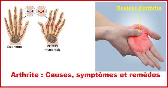 Arthrite : Causes, symptômes et remèdes