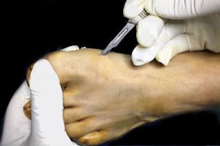 Cirugia percutanea del Pie