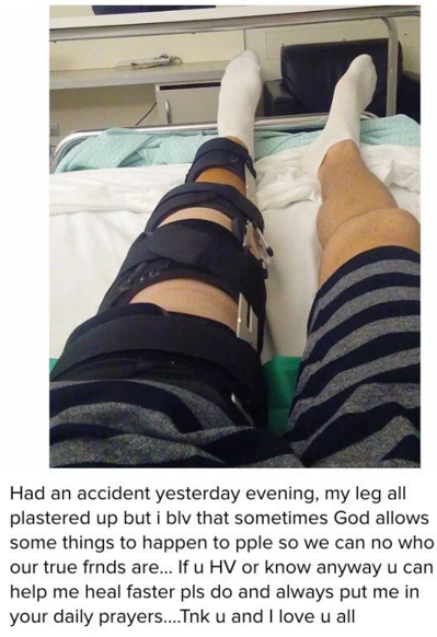nonso diobi broken legs