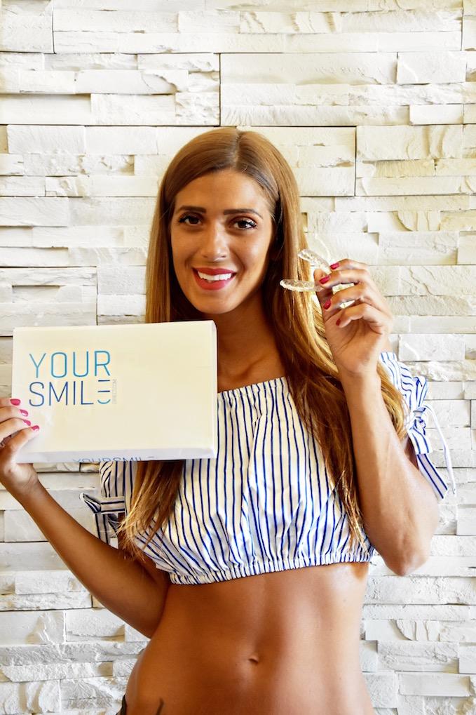 Ho deciso di regalarmi un nuovo sorriso, con YourSmileDirect