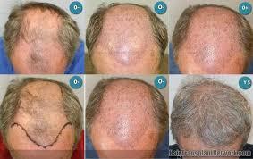 saç ekimi öncesi ve sonrası foto 14