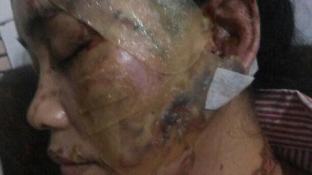 Bandar Domino QQ Rupiah   Tolak Dicerai, Siram Soda Api Ke Wajah Istri