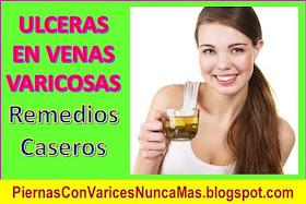 remedios caseros para sanar las ulceras varicosas