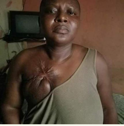 nollywood-makeup-artist-with-breast-cancer