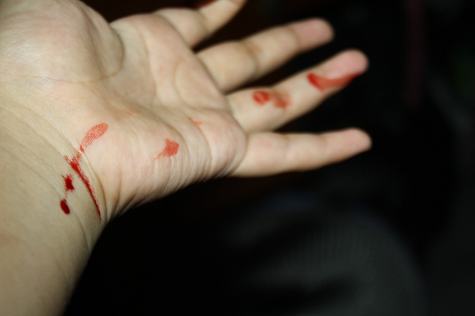 Luka Sayat Gambar Tangan Berdarah Di Iris Silet