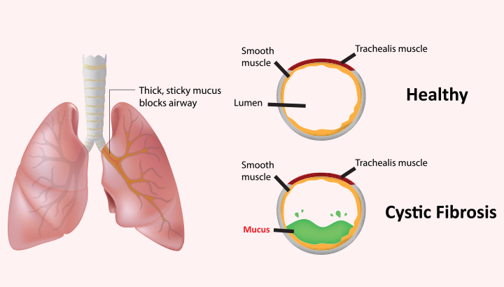 clinical description of cystic fibrosis Cite this page: cystic fibrosis  clinical features  gross description emphysema, bronchiectasis, abscess, fibrosis.