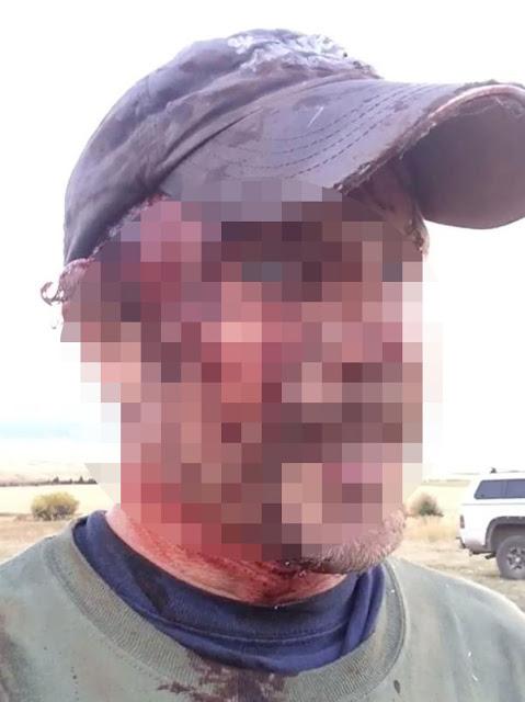Mira las heridas del hombre que fue atacado dos veces por una osa