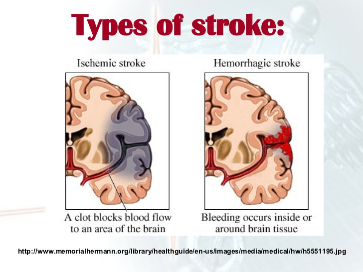 90% Of Strokes Can Be Prevented, Study Says