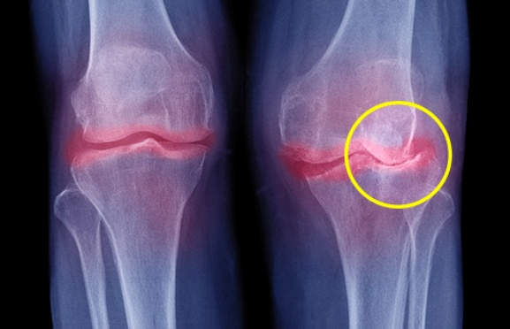 Osteoarthritis In The Knee Joint