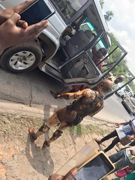 So Sad! Graphic Photos of Survivors of Petroleum Tanker Fire at Lagos-Ibadan Expressway